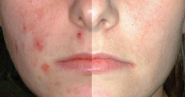 eczema symptoms mayo clinic